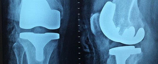 Ortopedista do HCor alerta para o aumento de lesões no joelho durante o outono e inverno